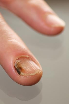 nagelgesundheit nagelkrankheiten n gel richtig pflegen. Black Bedroom Furniture Sets. Home Design Ideas